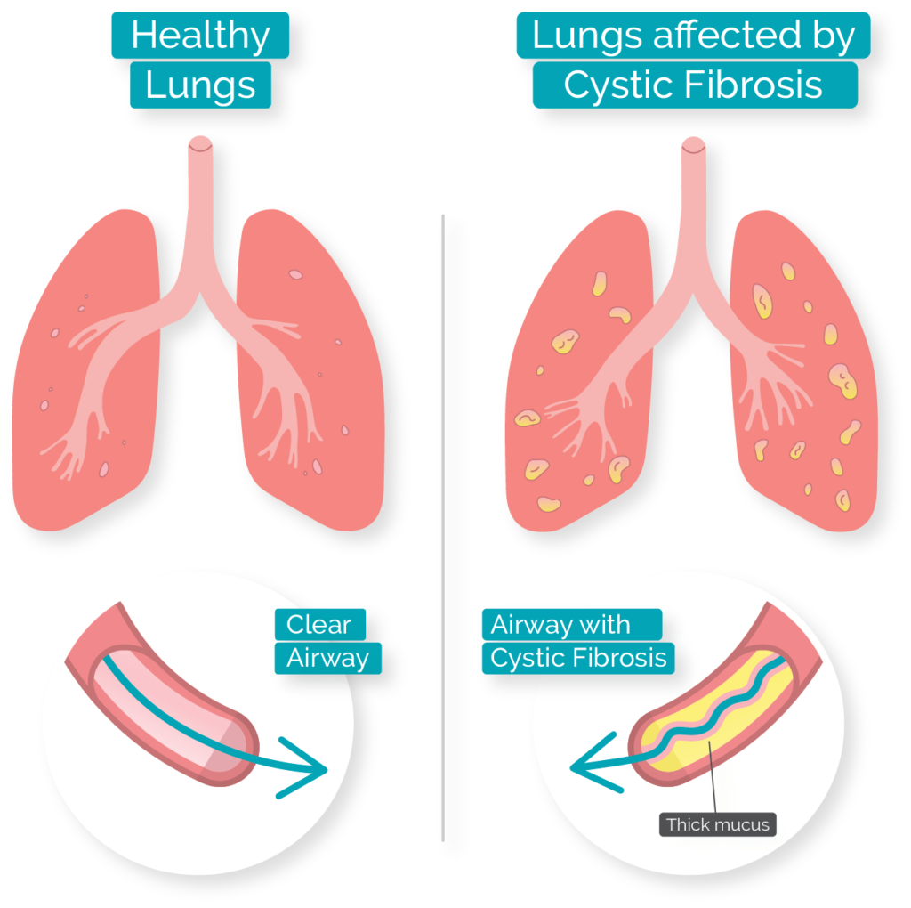 Image comparing healthy lung and a lung with cystic fibrosis